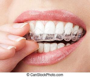 שיניים, עם, ללבון, מגש