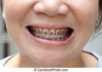 שיניים, עם, מישענים