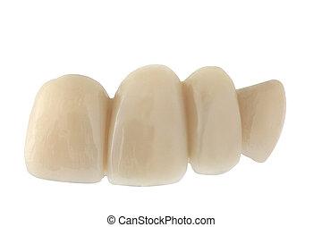 של השיניים, גשור