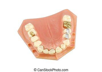 של השיניים, דגמן, (with, שונה, treatments)