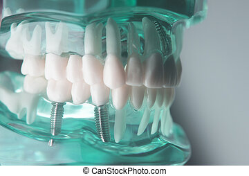 של השיניים, טיטניום, השרש, הברג
