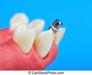 של השיניים, טיטניום, השרש