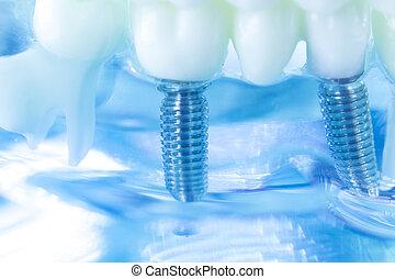 של השיניים, טיטניום, שן, השרש
