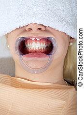 של השיניים, טיפול קוסמטי