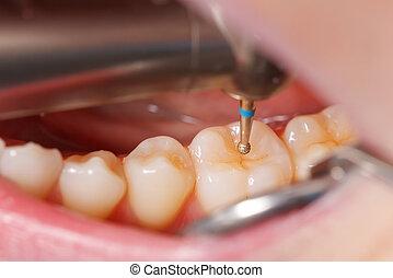 של השיניים, לקדוח