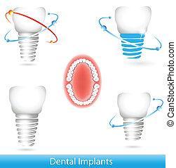 של השיניים, משריש