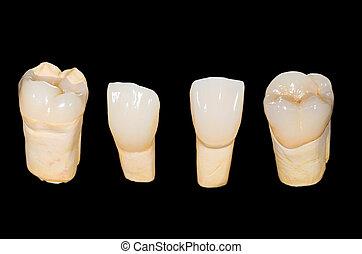 של השיניים, קרמי, כתרים