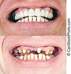 של השיניים, שיקום