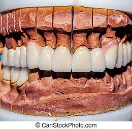 של השיניים, תותבות, חרסינה, zirconi