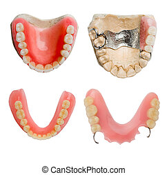 של השיניים, תותבות