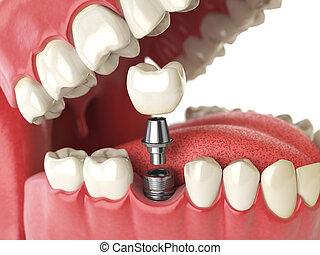שן, בן אנוש, implant., של השיניים, concept., שיניים אנושיים, או, dentures.