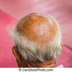 ∥あるいは∥, 毛, 頭, マレ, 薄くなる, 脱毛症