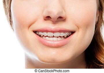 ゆとり, 幸せ, 女性, orthodontic 歯列矯正ブレース, 微笑