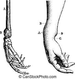 より低い, illustration., 辞書, labarthe, 危機, 型, -, 1885., 刻まれる, 破砕...
