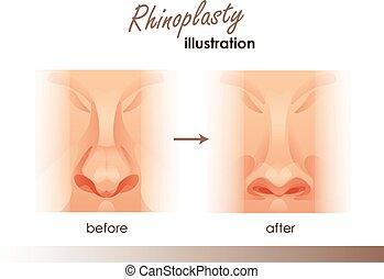 イラスト, 手術, 前に, プラスチック, 前部, 人間, nose., 光景, 後で, rhinoplasty.