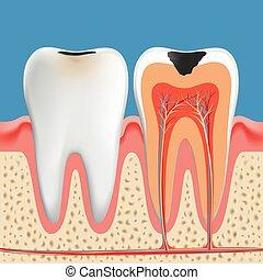 エナメル, dentin, poster., 解剖学, カリエス, 腐食, 歯