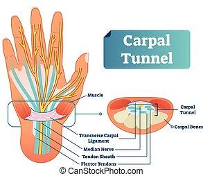 クローズアップ, 中央, flextor, トンネル, 図, ベクトル, 腱, carpal, 神経, イラスト, 靭帯, 医学, scheme., 筋肉, 腱, ラベルをはられた, bones., 横切っている, さや