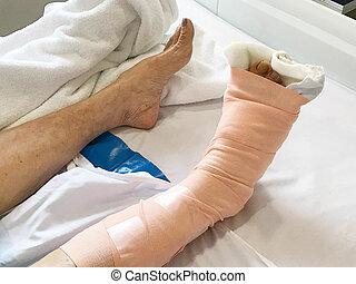 クローズアップ, 女, 患者, asain, 足, 病院ベッド, 包帯をされた, あること