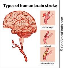 ストローク, タイプ, 人間の頭脳