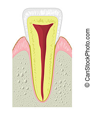 セクション, 歯, 交差点, 典型的