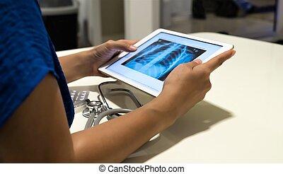 タブレット, 医者, イメージ, 分析, デジタル, x 線