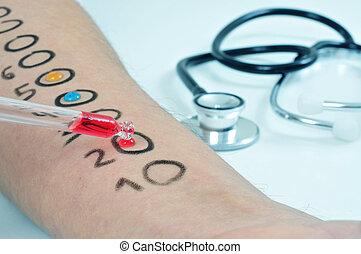 テスト, アレルギー, 皮膚