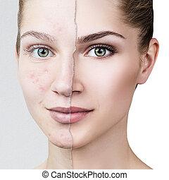 ニキビ, 古い, skin., 健康, 写真, 比較しなさい