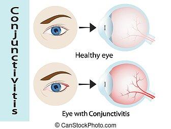 ピンクの目, conjunctivitis., 目, (with, inflammation)., 縦, セクション, 外部である, 人間, eyelids., 光景