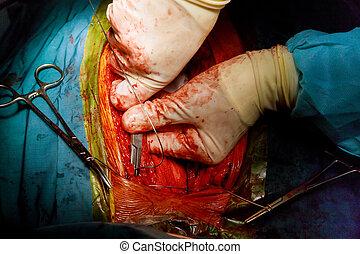 中心の外科医, 開いた, プロシージャ, 手