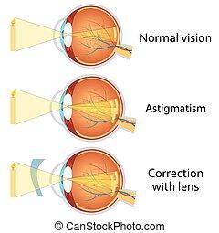 乱視, 円筒状である, corrected, lens.