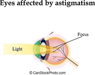 乱視, 情緒, astigmatism., 損なわれる視野