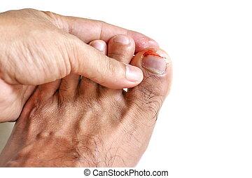 事故, 数字, 爪, 出血, かいよう, onychocryptosis, 釘, 釘, フィート, から, 外傷, つま先