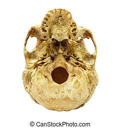 人的頭骨, fracture(beneath), (mongoloid, 上, 被隔离, 背