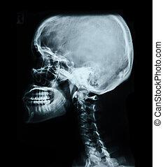 人間, image., 頭骨, x 線