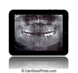 人間, teeths, x 線, 上に, ∥, デジタルタブレット