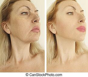 以前, 脸, 在之后, 皱纹, 处理, 妇女