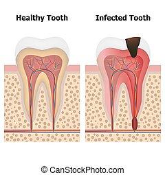 健康, pulpitis, 歯