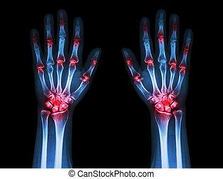 兩個都, 复合, gout, ), (, 關節炎, 聯接, 黑色的背景, 手, 類風濕病