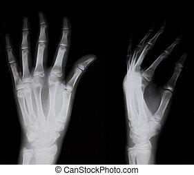 兩個都, x光, 人的手