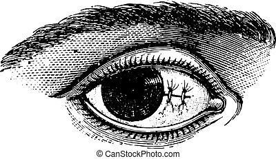 切除, pterygium, illustration., 辞書, labarthe, 型, 後で, -, 1885., 結膜, 縫合, 薬, 普通, dr, 刻まれる