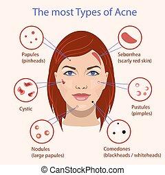 別, acne., problems., イラスト, ベクトル, 皮膚, タイプ