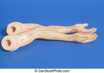 刺鍼術, 医学, モデル, 人間の術中