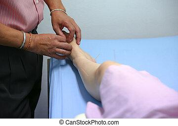 刺鍼術, 女, アジア人, 待遇, 医者