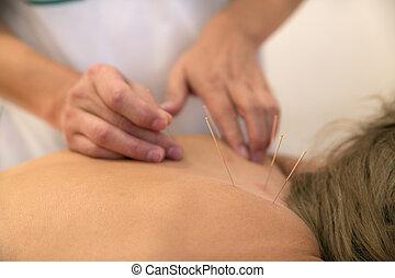 刺鍼術, 待遇