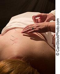 刺鍼術, 概念