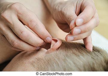 刺鍼術, treatment., 耳
