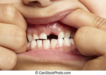 前部, 女の子, 行方不明の歯