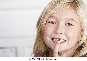 前部, 子供, 歯, 欠けている