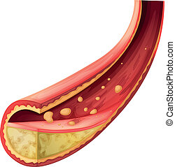動脈, 妨げられる, コレステロール