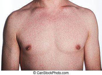 反応, アレルギー, 皮膚